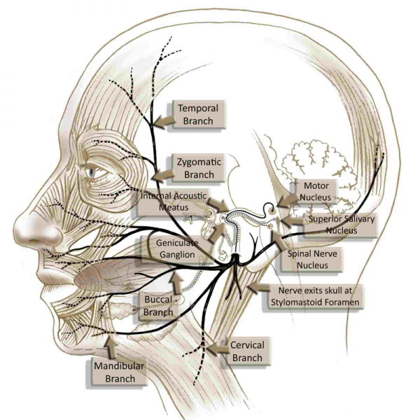 Acupuncture and Bell's Palsy (Facial Paralysis)