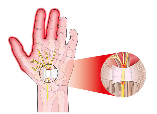 numbness and pain in the fingers caused by carpal tunnel syndrome