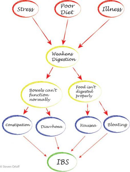 flow chart of IBS development