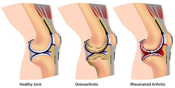 healthy joint and ones with osteoarthritis and rheumatoid arthritis